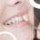 Les facettes sont-elles des solutions permanentes pour l'esthétique des dents?  – Infos Dentiste